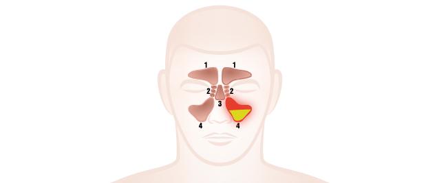 副鼻腔内に膿がたまる