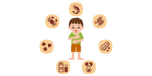 アトピー性皮膚炎の新薬開発へ かゆみの根本的な治療に希望の光!