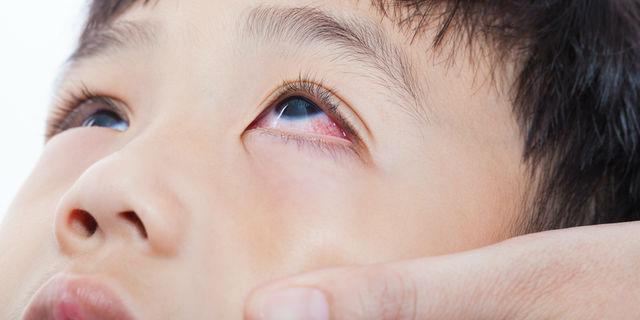 【眼科医が教える】目薬を嫌がる子どもに上手にさす方法