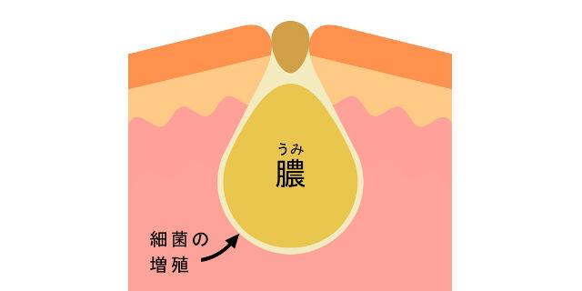子どもの耳の周りに謎の小さな穴が…「耳瘻孔」の原因と治療法とは?
