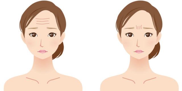 額と眉間のシワがある女性