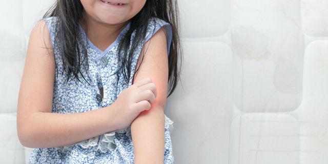子どもの繰り返す湿疹は何が原因?ママが知りたい効果的な予防対策