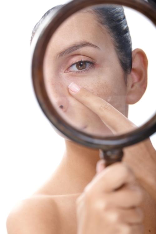 シミを虫眼鏡で見ている女性の写真