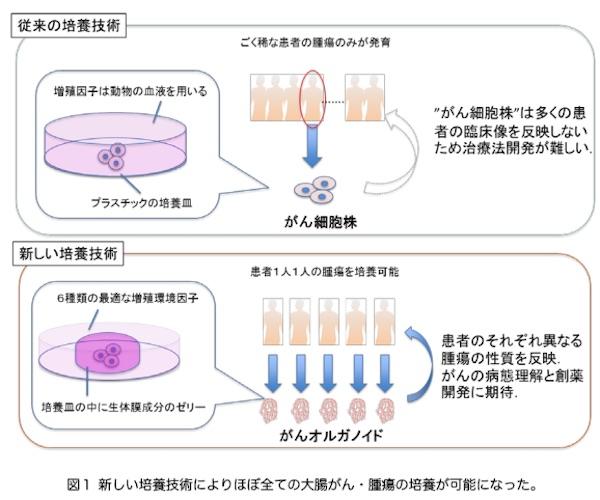 体外で大腸癌の腫瘍を培養する,手術不可の大腸癌,大腸がんの治療法,大腸ガン細胞,オルガノイド技術