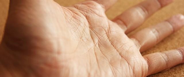 手を見るだけでなりやすい病気が分かる!?早期発見5つのポイントとは