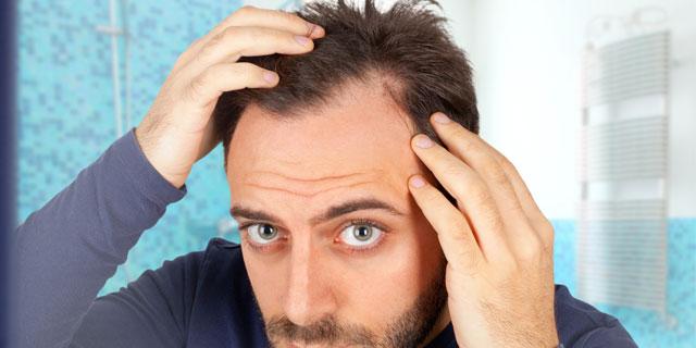 自分やパートナーの抜け毛が気になり始めたら…1分でできるAGAチェック!