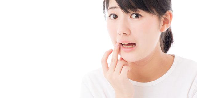 【詳しく教えてドクター!】口内炎の種類4つについて教えてください!