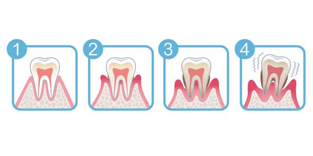 放って置いちゃダメ! 3つの歯茎トラブルを考える!