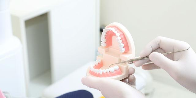 歯石除去は絶対必要! 除去することで得られる効果とは?