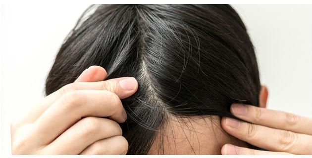 痒い、痛い、頭皮湿疹!気になる4つの原因と効果的な対処法とは
