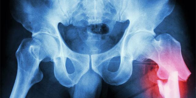 【J1 川崎 中村憲剛】全治3週間「左股関節外旋筋肉離れ」を医師が解説