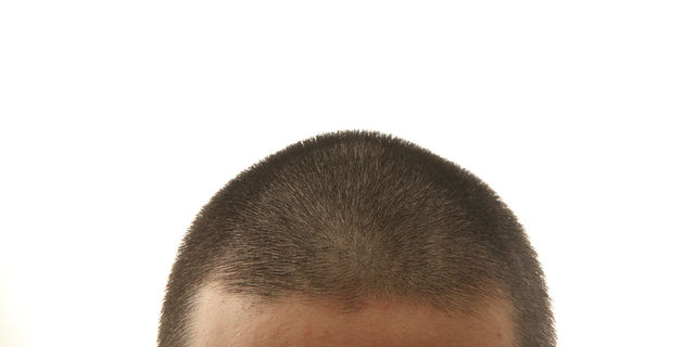 【保存版】薄毛の人が坊主頭にするメリット・デメリット