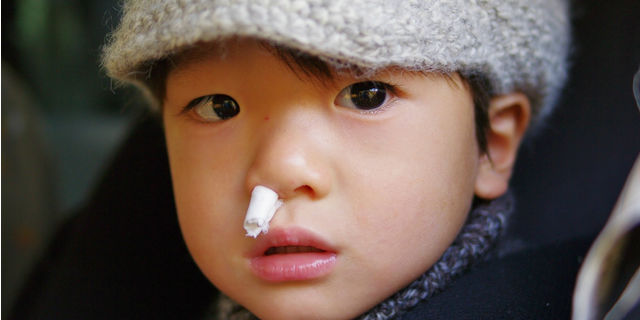 鼻血の正しい対処法 鼻血がよく出る人の原因と危険な病とは?