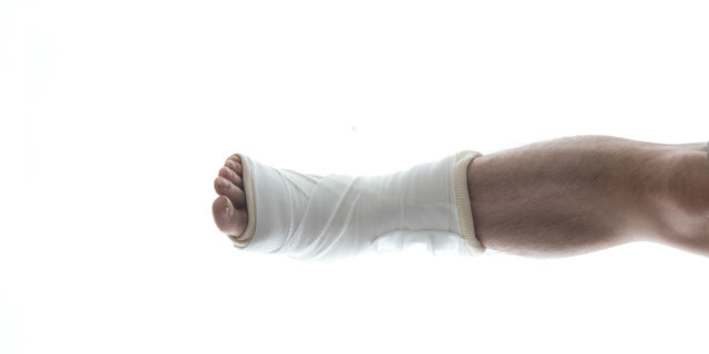 スポーツ好きは剥離骨折に要注意!捻挫と間違われやすい症状の特徴
