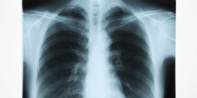 ≪三笠宮さまご逝去≫公表された急性肺炎による心機能低下の病状