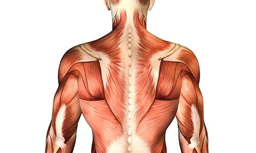 【医師監修】何もしていないのに筋肉痛に!考えられる3つの原因とは?